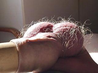 Sunshine foreskin 3 of 8...