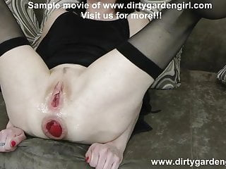 Dirtygardengirl hard anal fisting & punching with Alex Thorn
